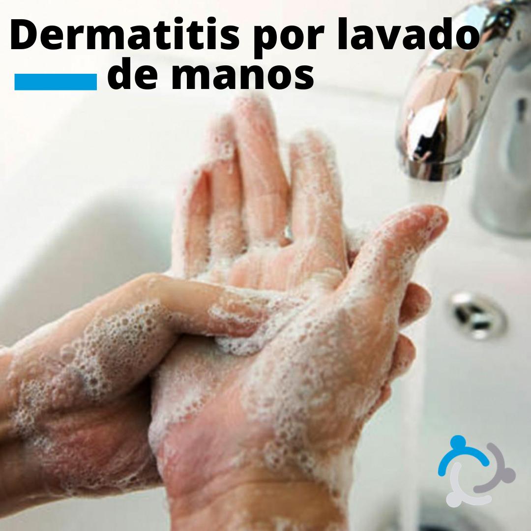 Dermatitis por lavado de manos